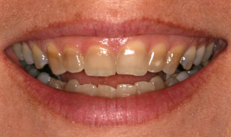 discolored20teeth20tetracycline20stain
